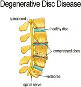 Stem Cells for Degenerative Disc