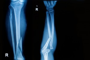 Stem Cells for Fractures