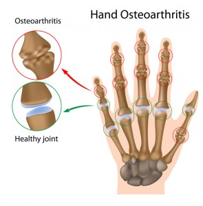 Stem Cells for Wrist Arthritis