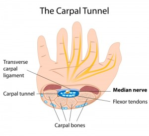 Stem Cell Therapy for Carpal Tunnel Syndrome