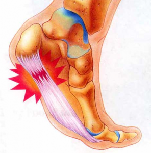 Stem Cells for Heel Pain