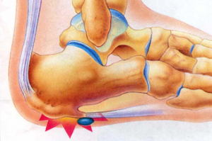 Stem Cell Therapy for Plantar Fasciitis