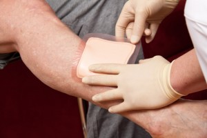 Stem Cell Therapy for Wound Healing