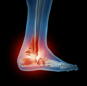 Stem Cells for Foot