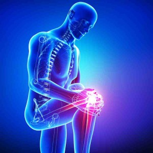 Stem Cells for Knee Arthritis