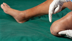 Stem Cells for Phantom Limb Pain