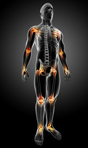 Arthritis Stem Cell Therapy