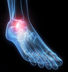 Stem Cells for Stress Fractures