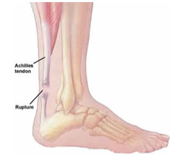 Achilles-Tendon-Tears2