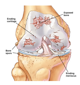 PRP therapy for knee arthritis