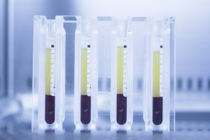 stem cell plasma therapy works
