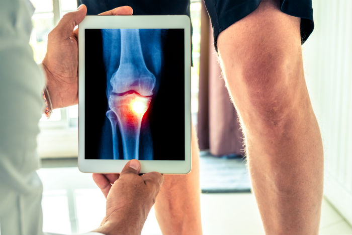 Laredo doctor holding tablet with a patient's knee xray