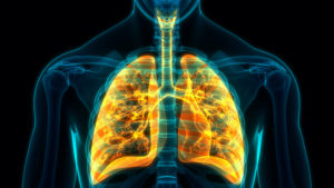 stem cell therapy for copd in mexico